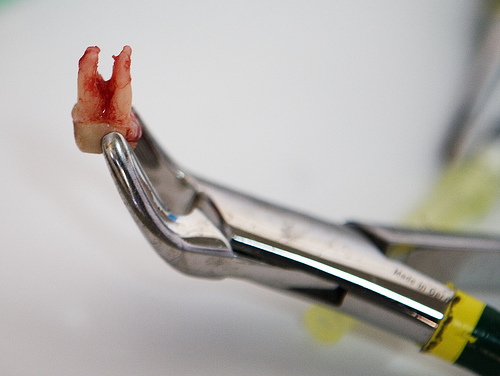 Ekstrakcije (puljenje) zob