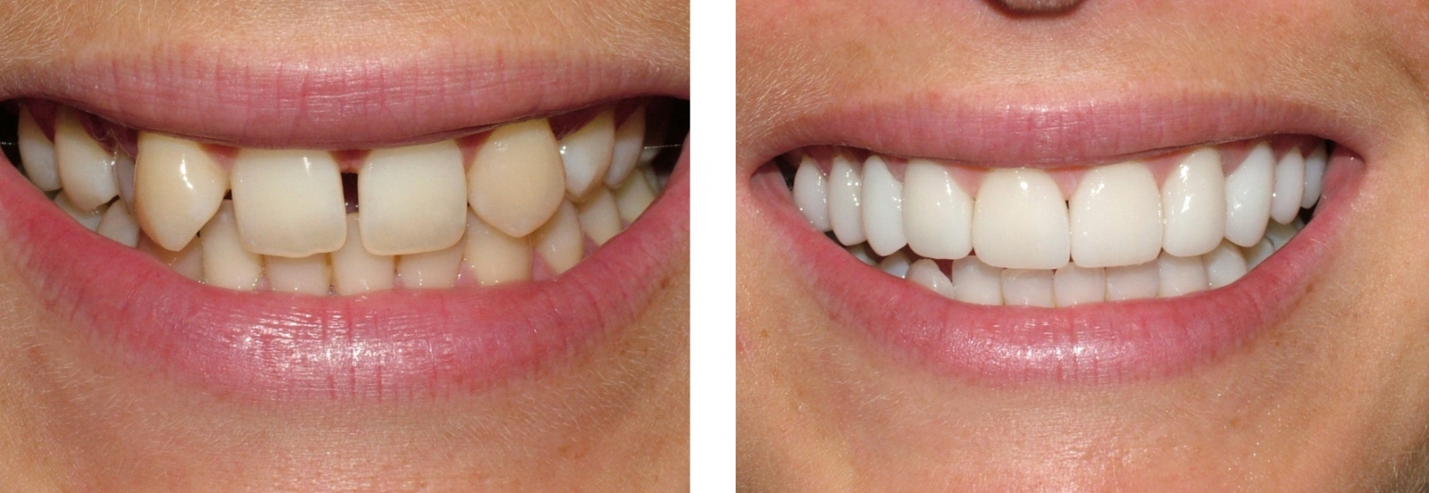 Smile Makeover- Veneers