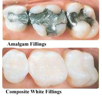 White composite fillings